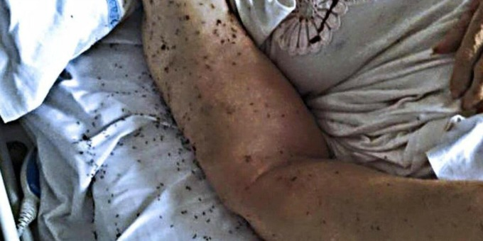 Formiche nei letti dell'ospedale San Paolo di Napoli: una vergogna inaudita!